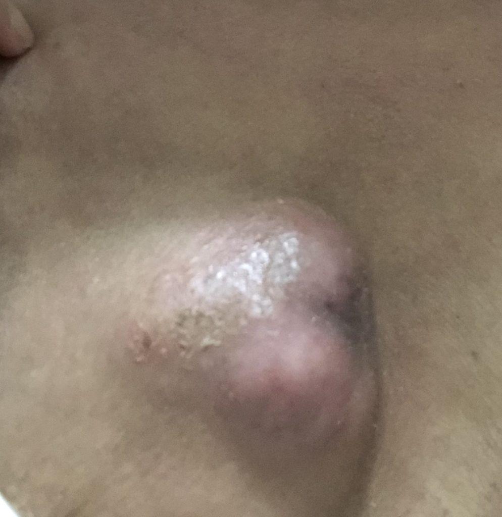 乳がんのしこりの写真。左胸。針生検後