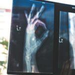 O.K.の指サインのレントゲン写真