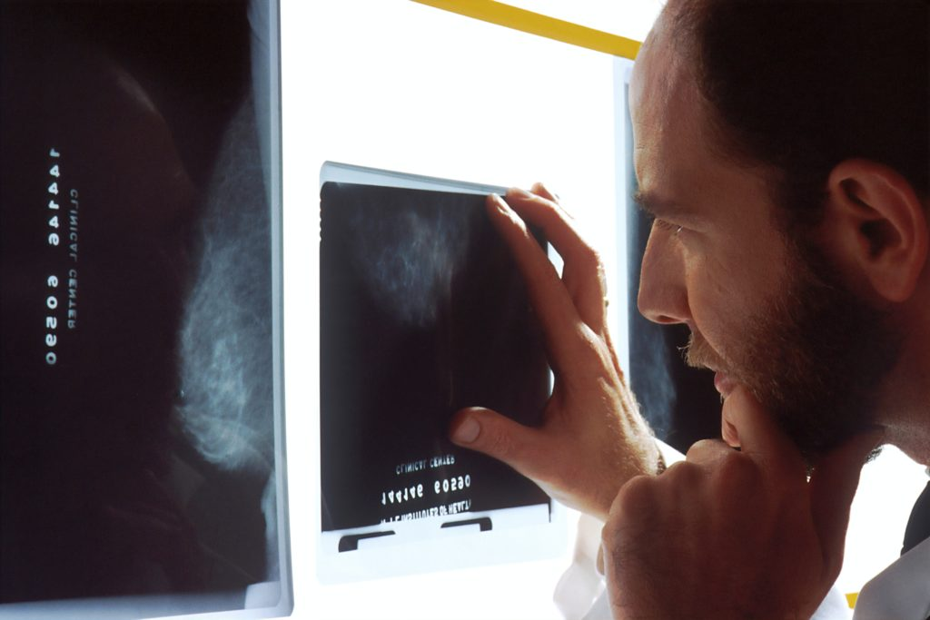 乳がんのレントゲンを見ている医師